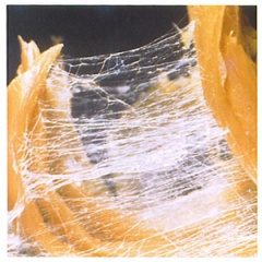 Healthy fascia looks like a spiderweb http://www.bettermovement.org